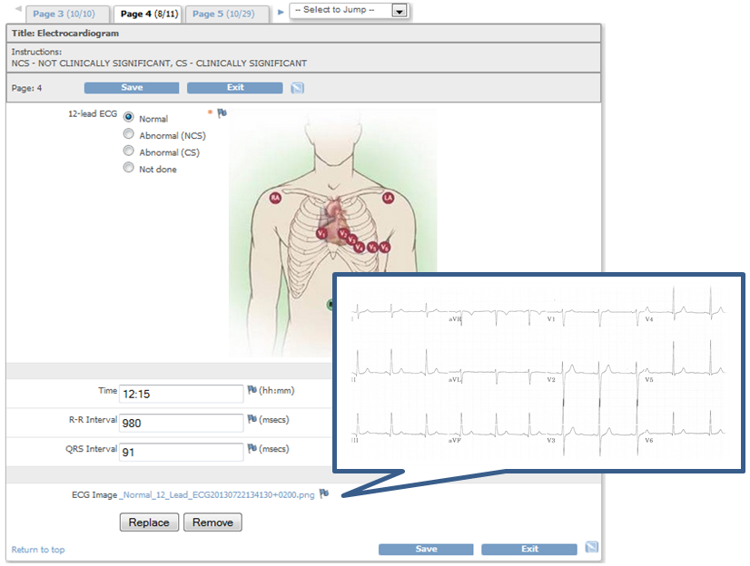 QCTMS EDC eCRF also allows uploading patient images, images for better explanation etc.